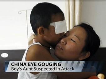 Китайский врач решил подарить мальчику бионические глаза