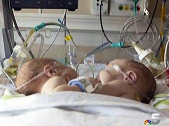 В Далласе успешно разделили сиамских близнецов