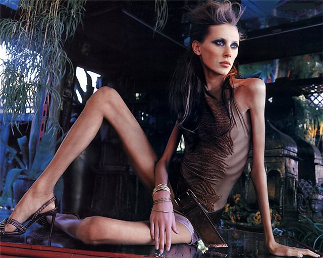 Исследование подтвердило: у анорексии генная природа