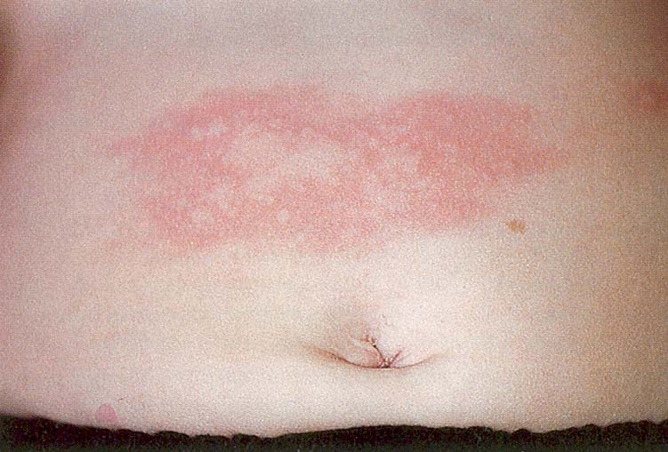 Средства, раздражающие кожу