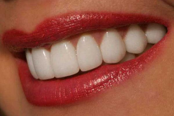 Самое важное в уходе за зубами