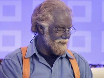 «Человек с голубой кожей» умер в возрасте 62 лет