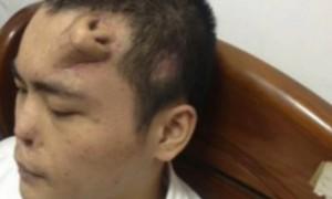 Китайцу на лбу выращивают новый нос