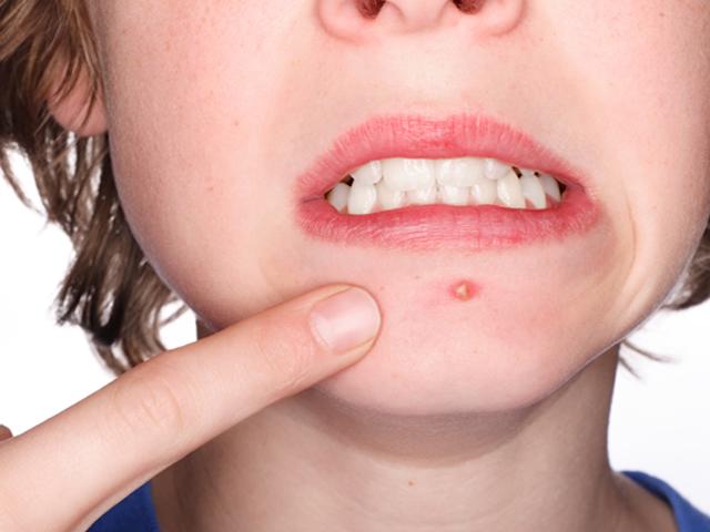 Минздрав поможет любому вылечить кожу от акне и рубцов