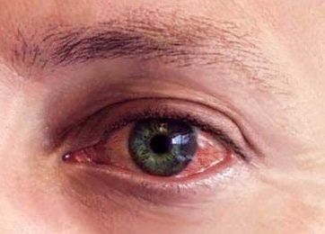 Хронически красные глаза: как избавиться
