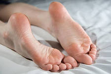 Натоптыши и трещины на ногах: профилактика и лечение