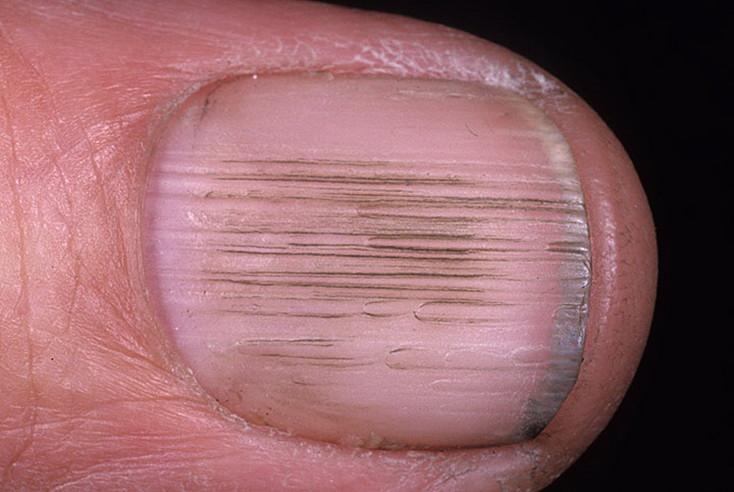 О чем сигнализируют заболевания ногтей