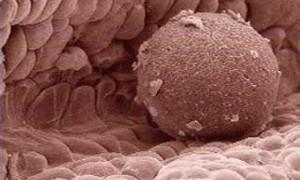 Многократные донации яйцеклеток не оказывает отрицательного эффекта на репродуктивное здоровье женщин-доноров