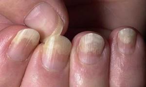 Болезни ногтей на руках: лечение