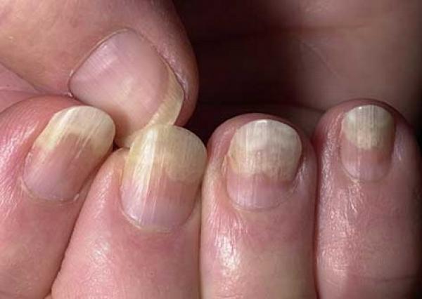 Спрей от грибка на ногах микостоп