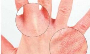 Как появляются болезни кожи: мнение специалистов