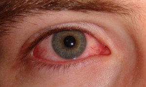 Краснота глаз: 10 способов борьбы