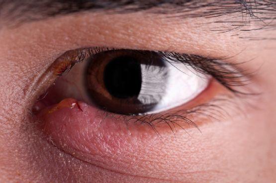 Ячмень на глазу: методы профилактики заболевания