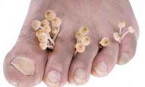 Как лечить грибок ногтей: возьмите на заметку
