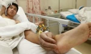 Китаец месяц жил с пришитой к лодыжке кистью руки