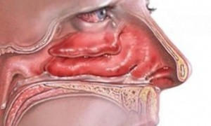 Новосибирские врачи освоили метод баллонной синусопластики