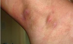 Почему болит под мышкой, причины и лечение боли под мышкой
