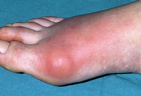 Диета при подагре на ногах: особенности питания при подагре