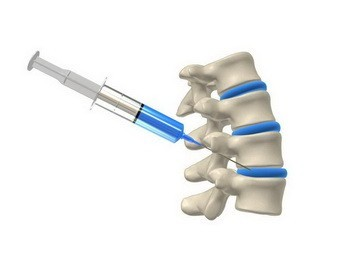 Стволовые клетки избавили пациентов от сильных болей в спине