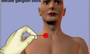 Симптомы менопаузы предложили облегчать блокадой звездчатого узла