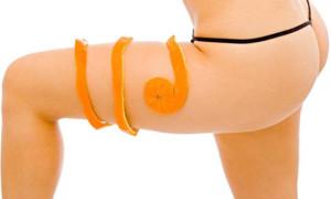 Какие есть методы борьбы с апельсиновой коркой