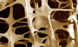 Ученые рассказали, как сохранить кости крепкими