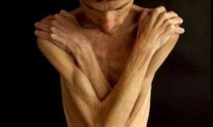 Нервную анорексию можно лечить «Гормоном любви»