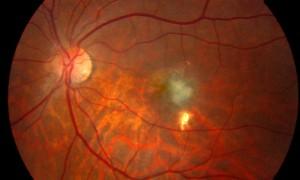 Предклинические испытания нового метода терапии влажной формы возрастной макулодистрофии сетчатки глаза дали обнадеживающие результаты