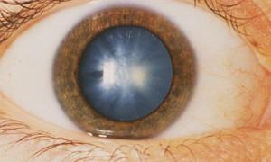 Луковые и медовые капли: лечение катаракты
