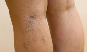 Как защитить ножки от варикоза