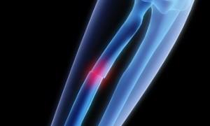 Создан «умный» гель для заживления переломов костей