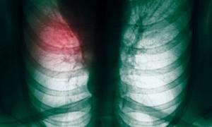 Создан новый тест для выявление рака легких