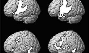 Доказано замедление старения мозга при изучении иностранного языка