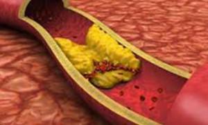 Хроническое воспаление десен ведет к атеросклерозу