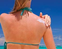Риск солнечных ожогов недооценивают
