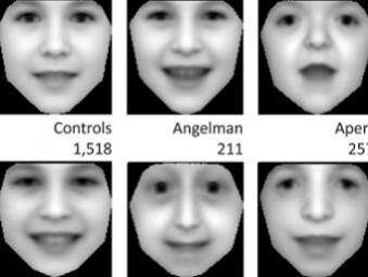 Редкие генетические болезни будут выявлять по семейным фотографиям