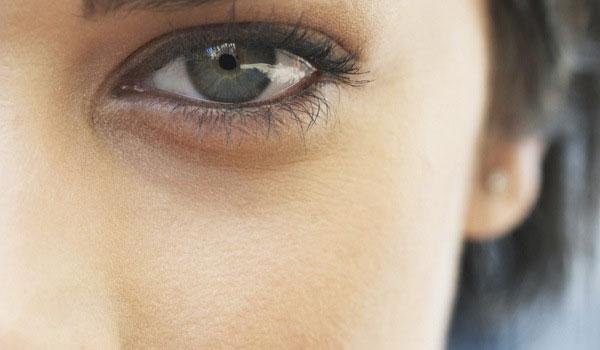 Как убрать отеки вокруг глаз