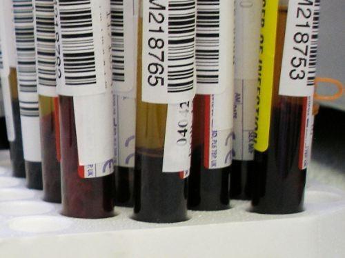 В крови отравившихся детей из Иркутска обнаружены психотропные вещества