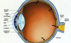 Открыта новая причина развития глаукомы