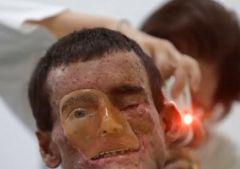 Редкое заболевание: кожа «тает» на солнце