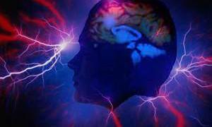 Бариатрические операции – независимый фактор отдаленного риска развития синдрома спонтанной внутричерепной гипотензии