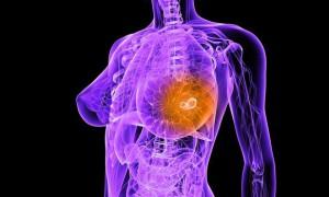 Лечение от рака груди можно будет подбирать персонально