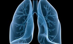 Найдена связь между легочной гипертензией, диабетом и раком