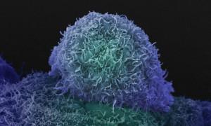 Рак простаты пообещали остановить серией инъекций