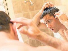 Себорейный дерматит – причина потери волос