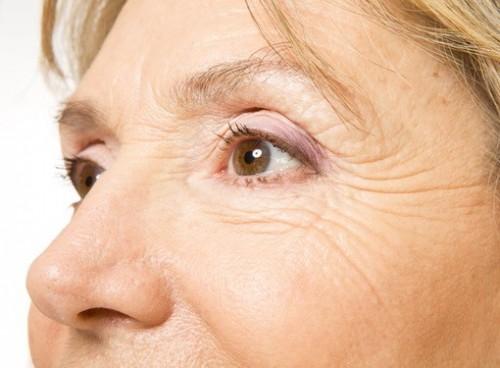 Препараты против морщин оказались способны продлевать жизнь