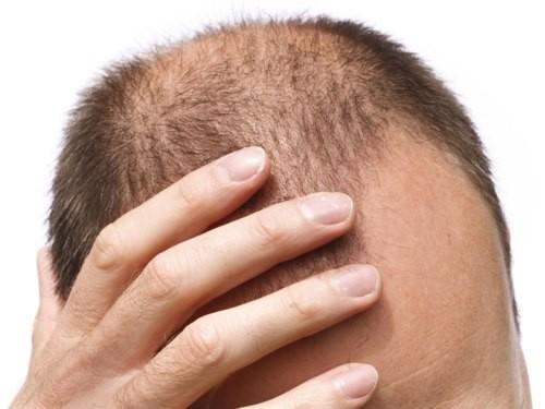 Противовоспалительные препараты могут активировать рост волос