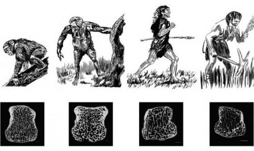 Малоподвижный образ жизни сделал хрупкими кости современного человека