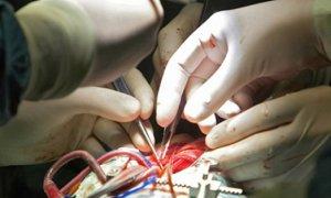 Продолжительность хирургической операции – независимый фактор риска развития венозной тромбоэмболии