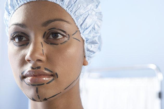 Неудачные селфи толкают людей делать пластические операции